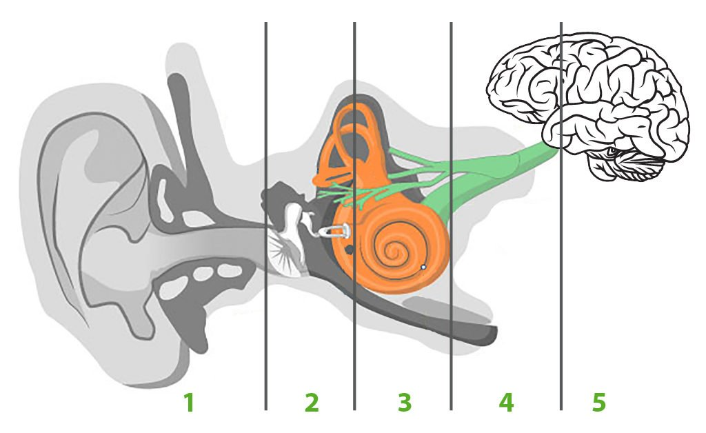 Przyczyny niedosłuchu -droga jaką pokonuje dźwięk - rysunek